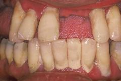 歯槽膿漏が進行すると…