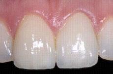前歯 術後