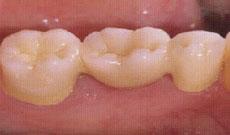奥歯への装着例