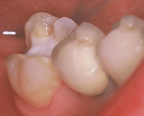 歯を削った状態