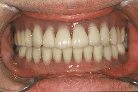 義歯を装着