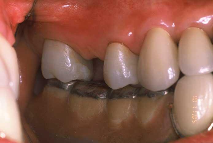 歯が欠損している