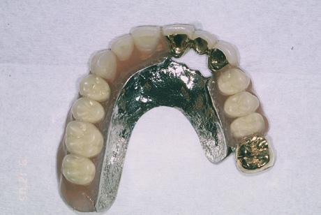 義歯側の様子