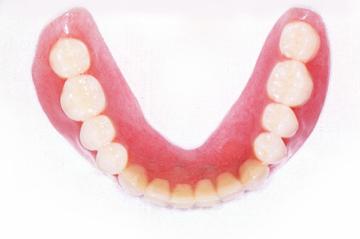 通常の保険義歯